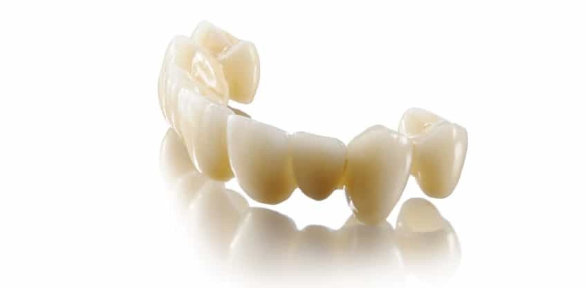 Corone In Zirconia