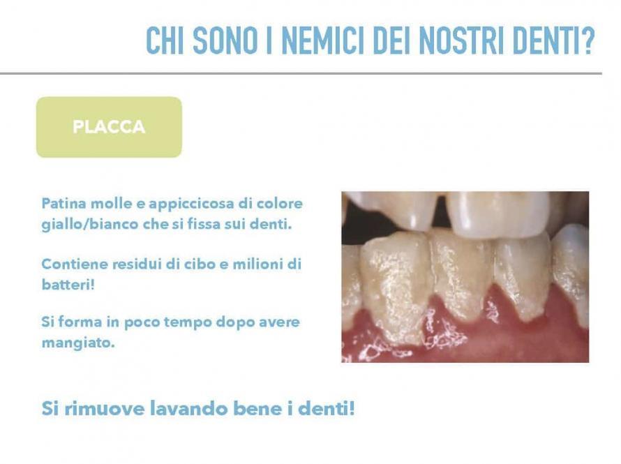 Chi sono i nemici dei nostri denti? Placca