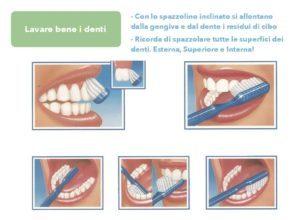 Lavare bene i denti