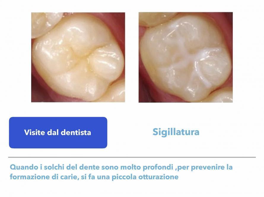Visite dal dentista
